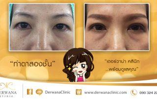 เดอร์วาน่า คลินิก DERWANA Clinic   ทำตาสองชั้น