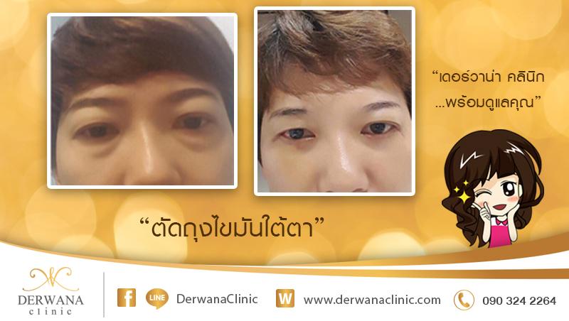 เดอร์วาน่า คลินิก DERWANA Clinic | ตัดถุงไขมันใต้ตา