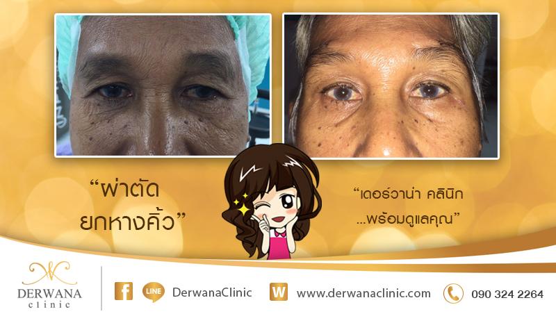 เดอร์วาน่า คลินิก DERWANA Clinic   ผ่าตัดยกหางคิ้ว