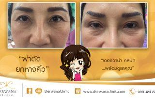 เดอร์วาน่า คลินิก DERWANA Clinic | ผ่าตัดยกหางคิ้ว