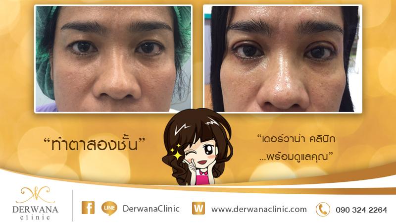 เดอร์วาน่า คลินิก DERWANA Clinic | ทำตาสองชั้น