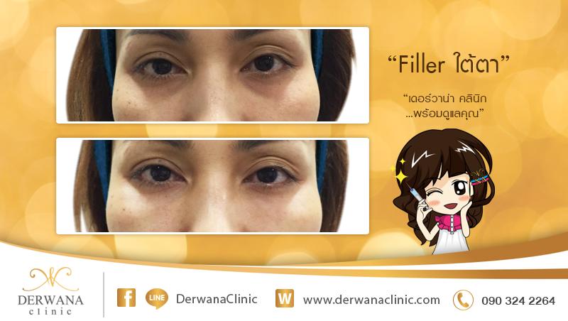 เดอร์วาน่า คลินิก DERWANA Clinic   Filler ใต้ตา