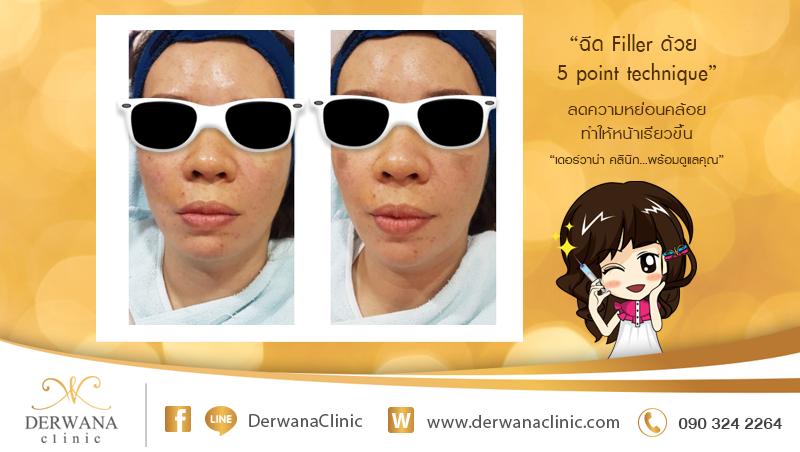 เดอร์วาน่า คลินิก DERWANA Clinic   ฉีด Filler ลดความหย่อนคล้อย