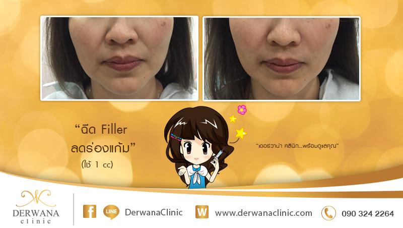 เดอร์วาน่า คลินิก DERWANA Clinic   ฉีด Filler ลดร่องแก้ม