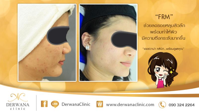เดอร์วาน่า คลินิก DERWANA Clinic | FRM