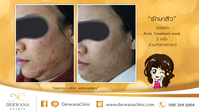 เดอร์วาน่า คลินิก DERWANA Clinic | รักษาสิว