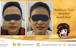 เดอร์วาน่า คลินิก DERWANA Clinic | Botulinum Toxin