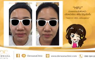เดอร์วาน่า คลินิก DERWANA Clinic | HIFU